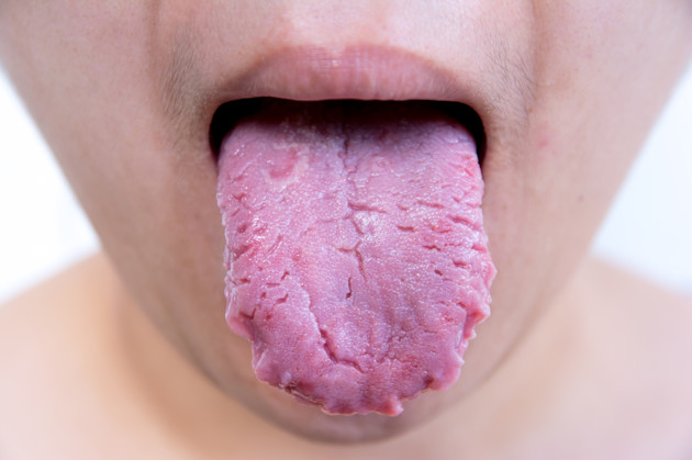 Is your tongue normal or is it trying to warn you of disease?