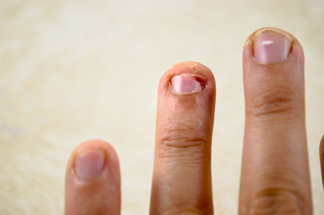 5 Dangerous Infections You Can Get When Bite Your Nails