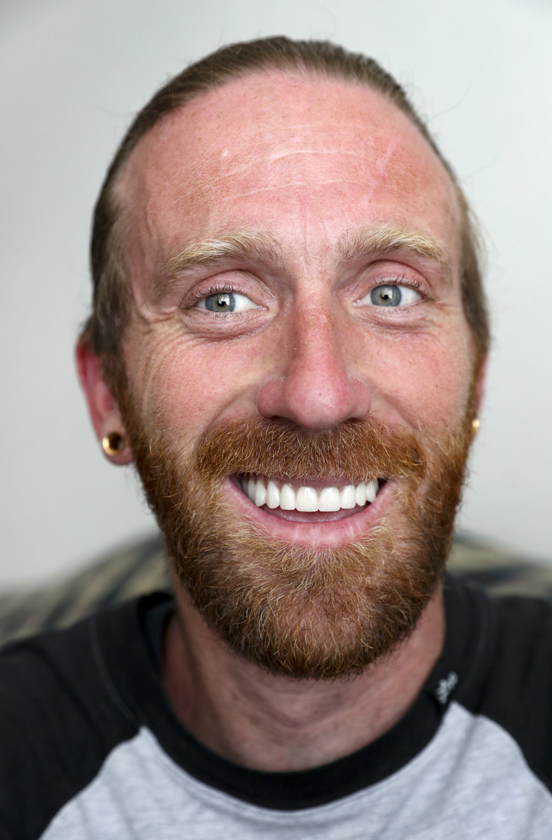 Branden Jenkins, who was arrested during Operation Rio Grande and later graduated from Odyssey House, talks about his road to recovery during an interview in his apartment in downtown Salt Lake City on Tuesday, June 4, 2019. His recovery included participating in a University of Utah FLOSS study where all of his teeth were pulled and he received new dentures. The study found giving major dental care to people in substance abuse treatment exponentially increased their success rates by helping them stay in recovery programs longer, finding employment and escaping homelessness.